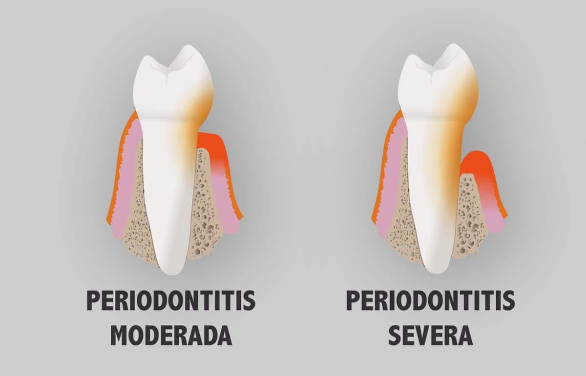 Periodontitis moderada y severa
