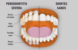 Periodontitis severa