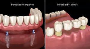 Prótesis dentales sobre implantes y sobre dientes