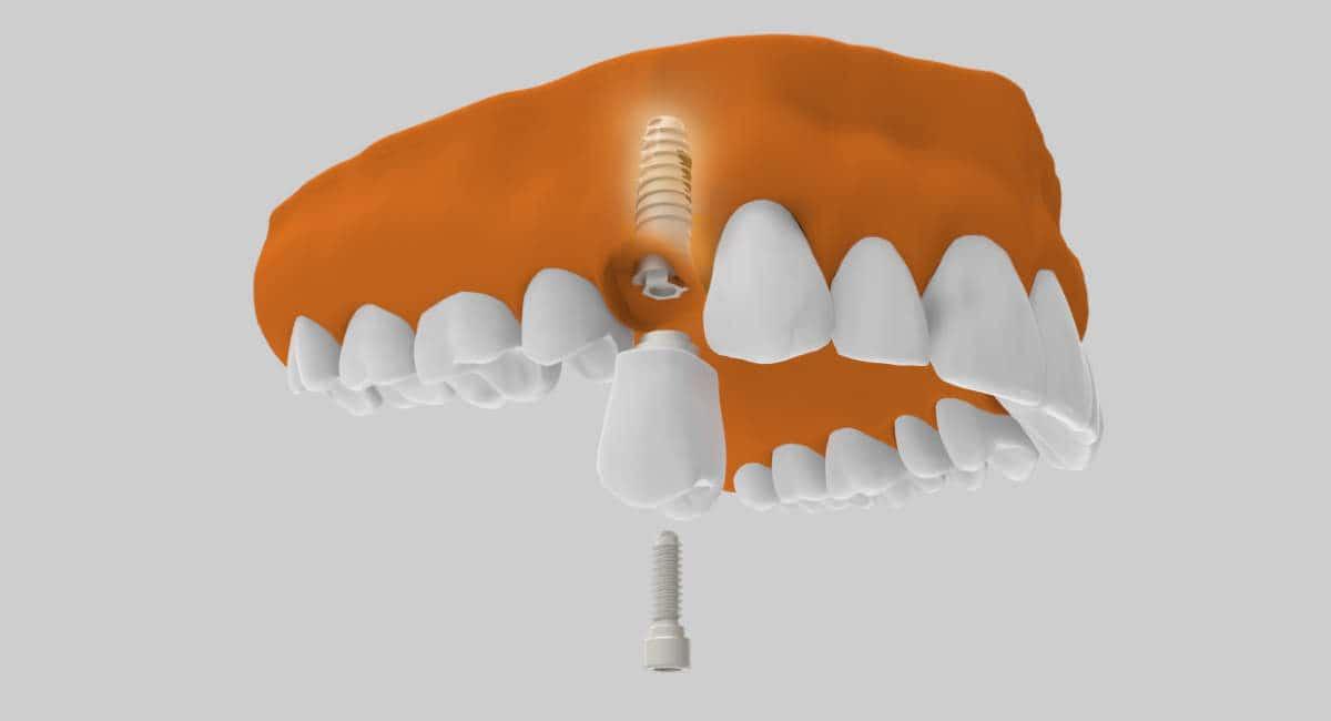 ¿En qué casos se recomienda la colocación de implantes de carga inmediata?