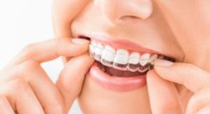 Tipos de ortodoncia removible