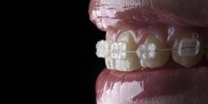 Tipos de ortodoncia. Descubre cuál es la mejor para ti.