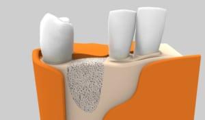 Pérdida ósea: factor fundamental que influye en el proceso de colocación de un implante dental