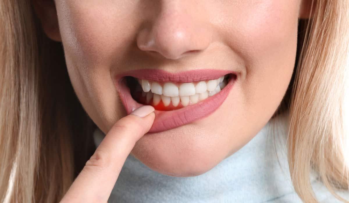 Inflamación bucodental - Urgencia dental