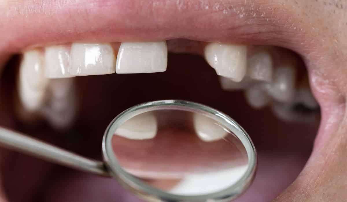 Pérdida de un diente - Urgencia dental