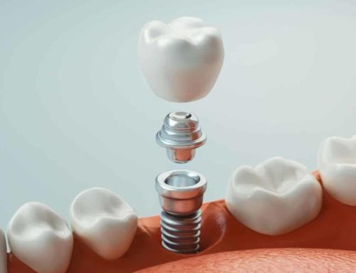 ¿Cuánto duran los implantes dentales?