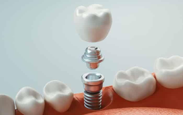 ¿Cuánto duran los implantes dentales?   Clínica Dental Luciano Badanelli