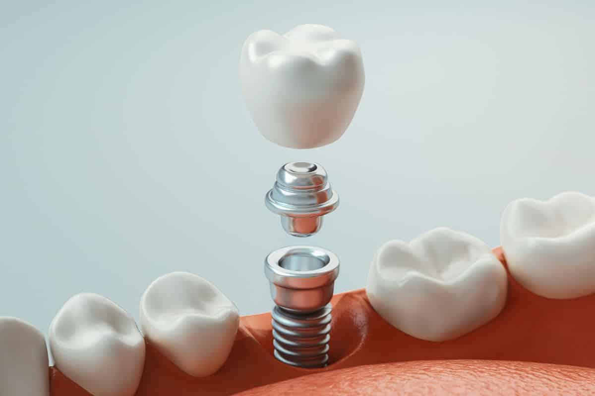 ¿Cuánto duran los implantes dentales? | Clínica Dental Luciano Badanelli