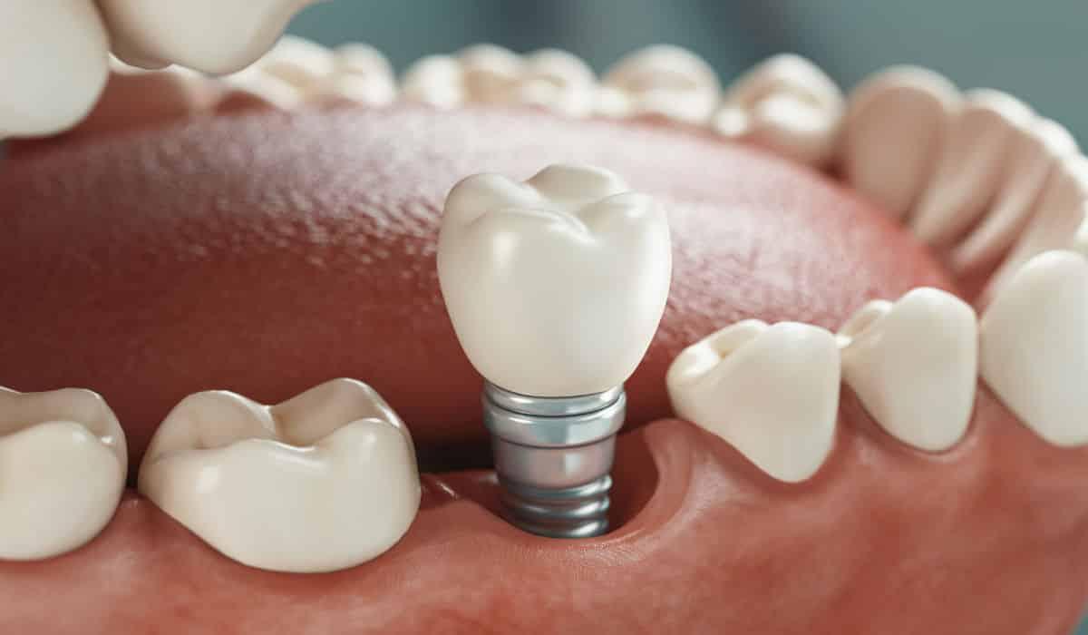 Los implantes dentales... ¿son para siempre? | Clínica Dental Luciano Badanelli