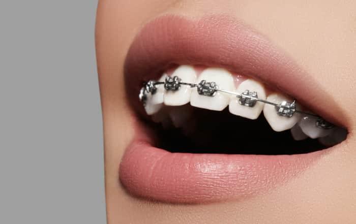 Ortodoncia ¿qué tipos hay y cuándo es necesaria?