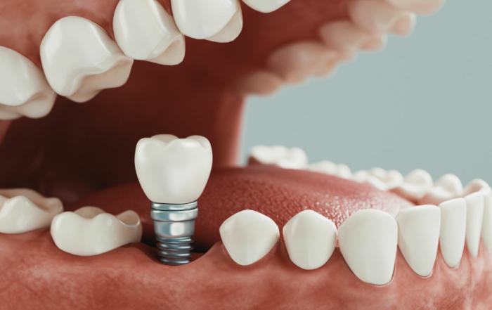 Cirugía con implantes dentales. Métodos y soluciones