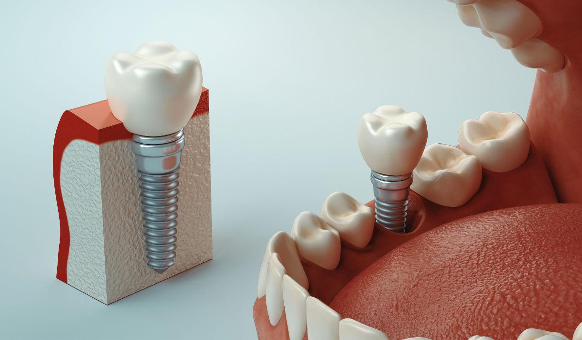 Principales técnicas de cirugía con implantes dentales. ¿En qué consisten?